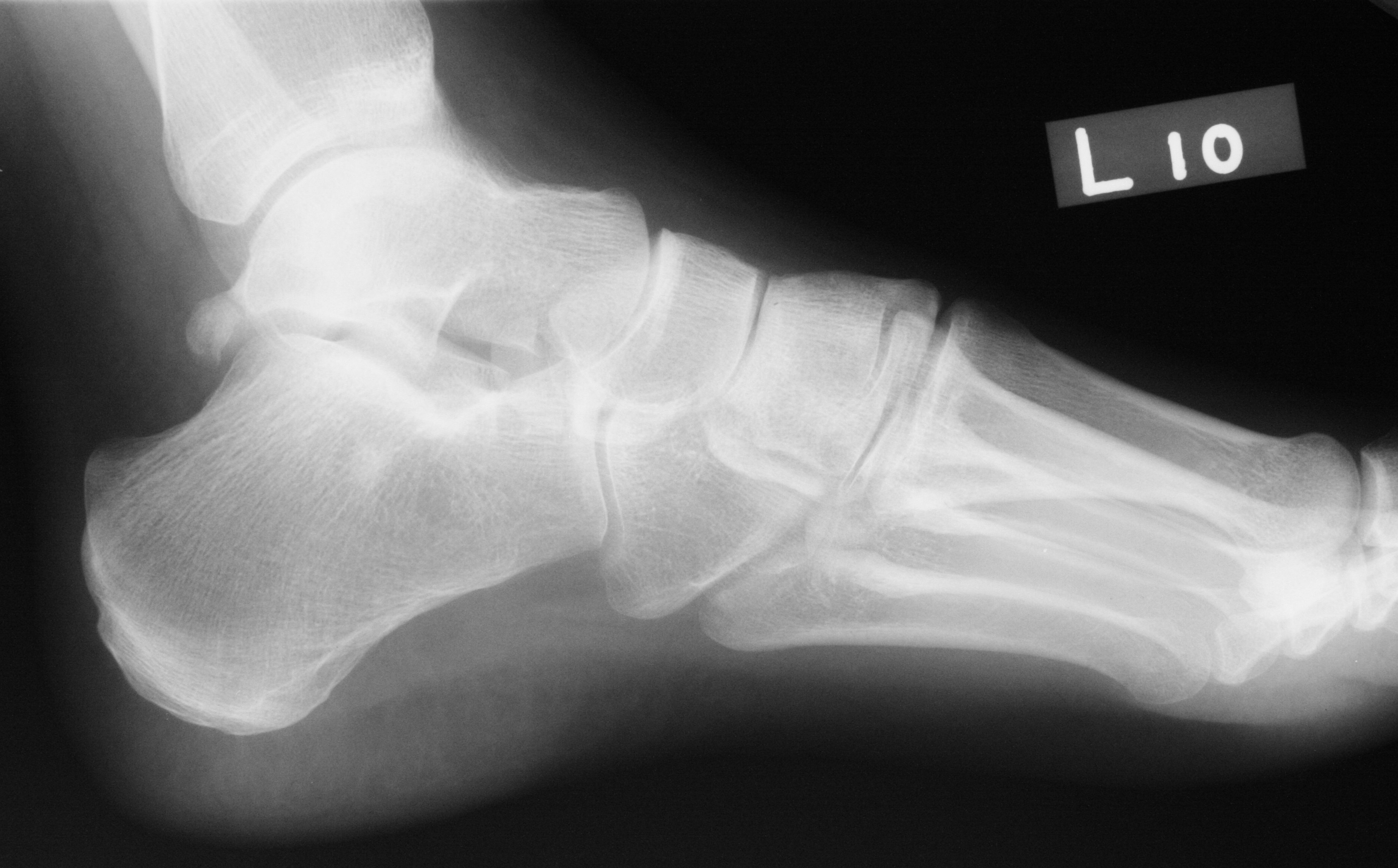 Accessory Navicular